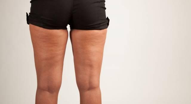 Tutto sulla cellulite: dalle cause ai rimedi migliori per combatterla!