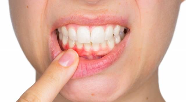 Gengivite: come curare denti e gengive in modo naturale