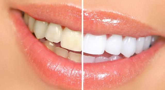 I rimedi della nonna per sbiancare i denti in modo naturale