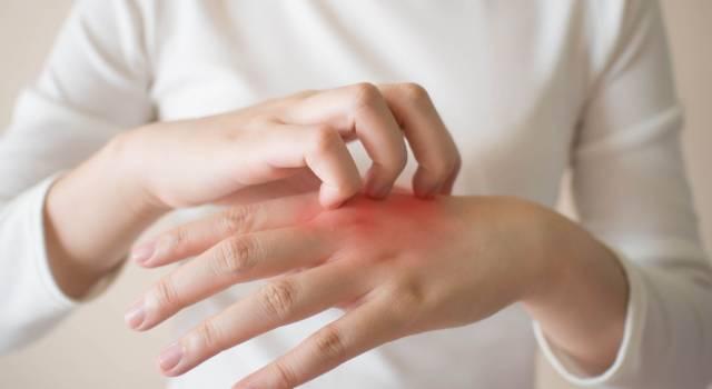 Hai un'improvvisa dermatite? Potrebbe essere lo stress: ecco come combatterla!