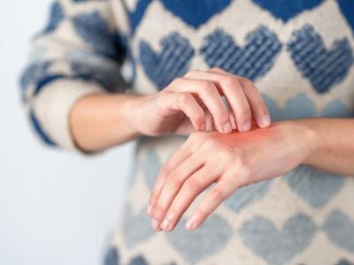 I rimedi naturali per il prurito alle mani