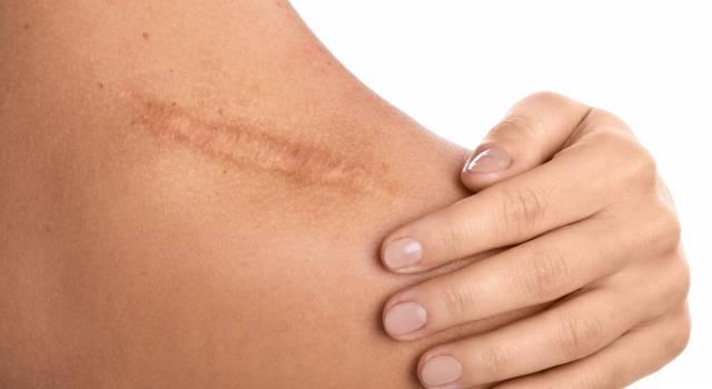 Problemi di cicatrici? Ecco come renderle meno visibili in modo naturale