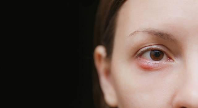Come curare l'orzaiolo: i sintomi, le cause e i rimedi più efficaci
