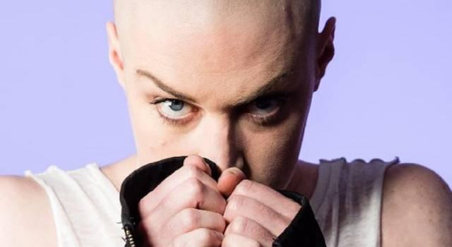 Stempiatura femminile, diradamento ed alopecia? Arriva la tricopigmentazione per donne