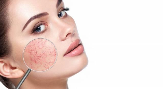 Couperose: cause, rimedi e consigli per coprire i rossori sul viso