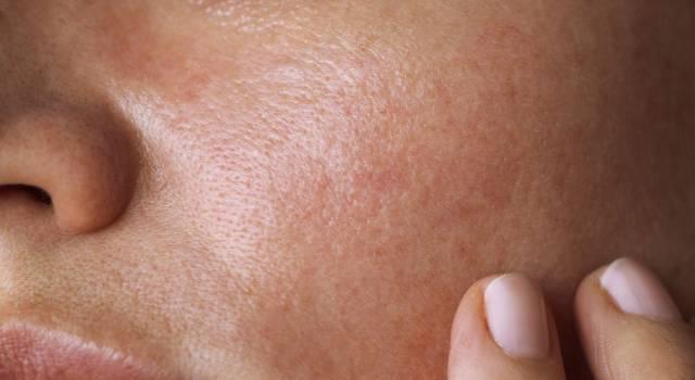 Macchie sul viso: 6 metodi naturali per eliminarle