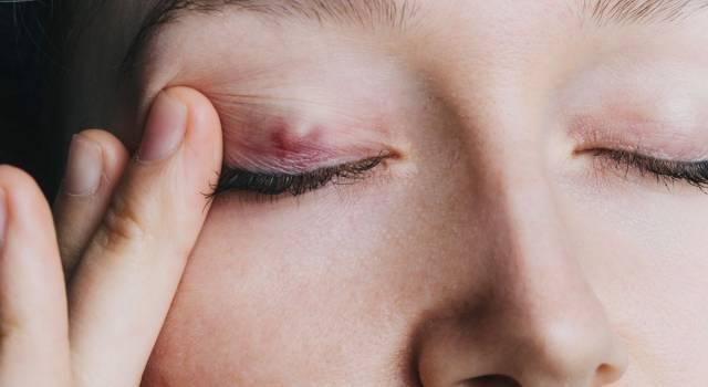 Calazio, quali sono i sintomi della cisti sulla palpebra e come liberarsene