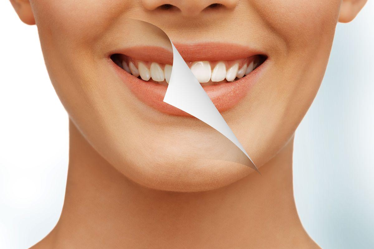Sorriso denti gialli e bianchi