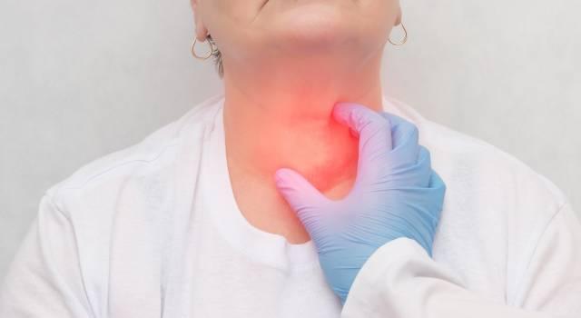Noduli alla tiroide: come capire se si soffre di carenza di iodio
