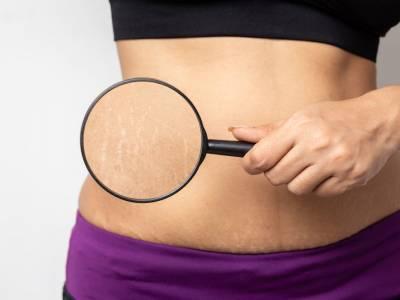 La comparsa delle smagliature in gravidanza e i metodi per prevenirle ed eliminarle