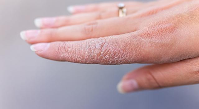 Dermatite alle mani: cos'è, quali sono le cause e come si cura