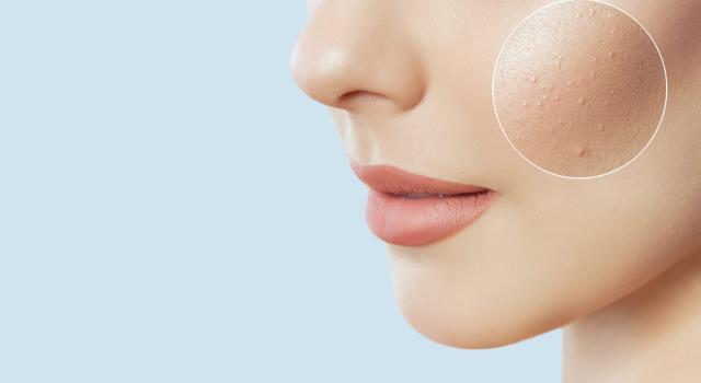 Dermatite sul viso: di cosa si tratta e come si cura