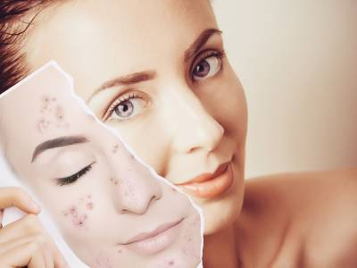 Peeling acne: a cosa serve e come funziona