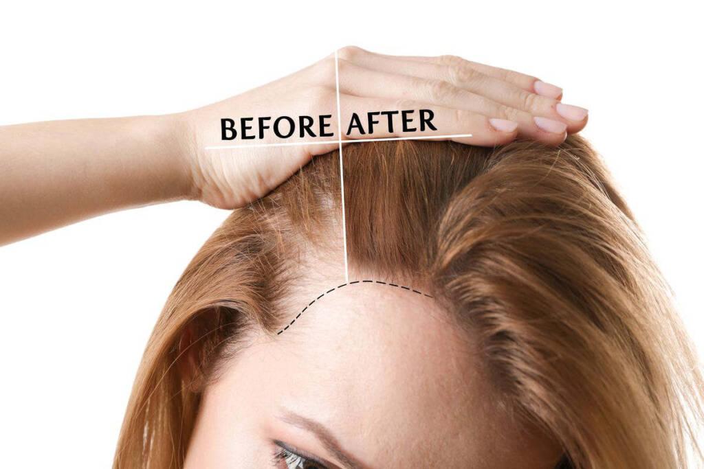 diradamento capelli