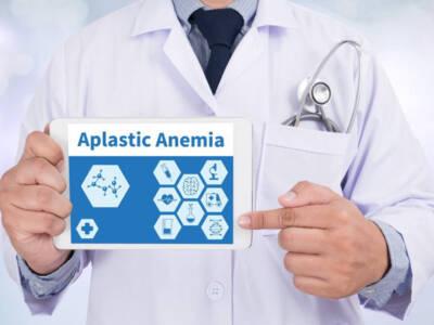 Anemia aplastica: cos'è e quali sono i sintomi da riconoscere