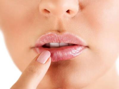 Come prevenire l'herpes in modo semplice e naturale